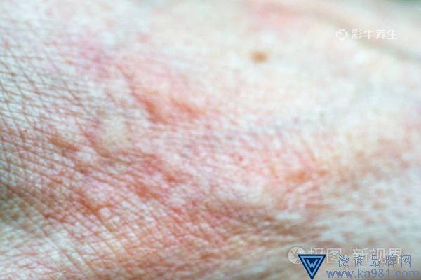 手掌水泡湿疹图片 手掌水泡湿疹怎么治疗